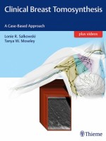 Clinical Breast Tomosynthesis A Case-Based Approach