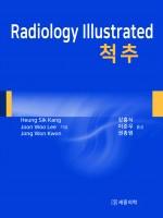 Radiology Illustrated : 척추