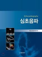 심초음파-Echocardiography