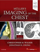 Muller's Imaging of the Chest, 2e