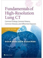 Fundamentals of High-Resolution Lung CT, 2e