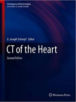 CT of the Heart (Contemporary Medical Imaging) 2nd Edition