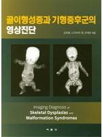 골이형성증과 기형증후군의 영상진단