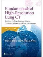 Fundamentals of High-Resolution Lung CT, 2e