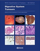 WHO Classification of Tumours of the Digestive System 5e