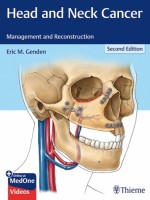 Head and Neck Cancer: Management and Reconstruction, 2e