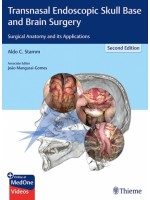 Transnasal Endoscopic Skull Base and Brain Surgery, 2e