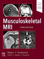 Musculoskeletal MRI, 3e