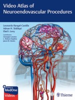 Video Atlas of Neuroendovascular Procedures