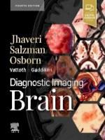 Diagnostic Imaging: Brain, 4e