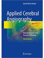 Applied Cerebral Angiography : Normal Anatomy and Vascular Pathology, 3e