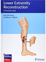Lower Extremity Reconstruction A Practical Guide