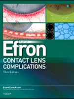 Contact Lens Complications,3/e