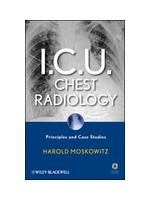 I.C.U. Chest Radiology: Principles and Case Studies