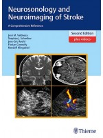 Neurosonology and Neuroimaging of Stroke 2e