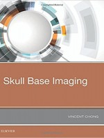 Skull Base Imaging, 1e