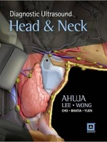 Diagnostic Ultrasound: Head and Neck, 1e