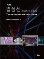 제2판 갑상선-영상진단과 중재시술