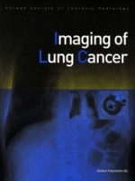 Imaging of Lung Cancer