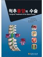척추종양의 수술