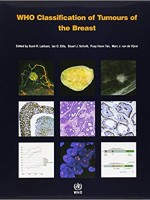WHO Classification of Tumours of the Breast,4/e