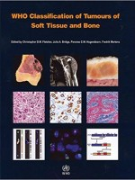 WHO Classification of Tumours of Soft Tissue and Bone